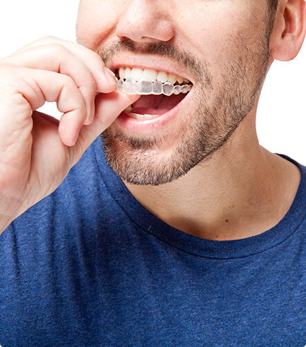 man inserting his clear aligners on his teeth