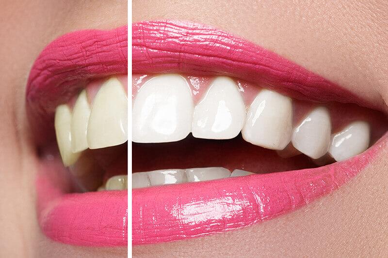 Teeth Whitening Dentistry Burleson, Keller, Uptown Dallas.