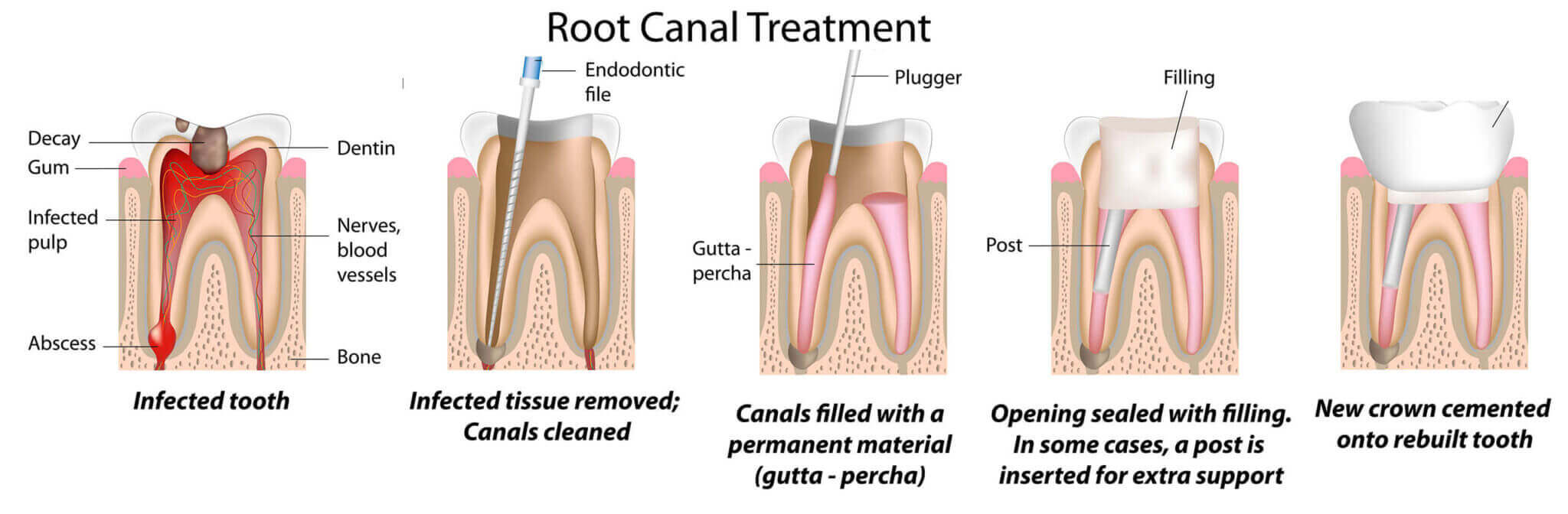 Root Canal Treatments in DFW