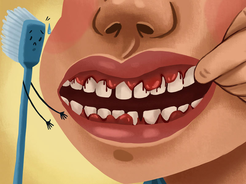 Cartoon picture of a mouth with bleeding gums next to a toothbrush with a sad face.