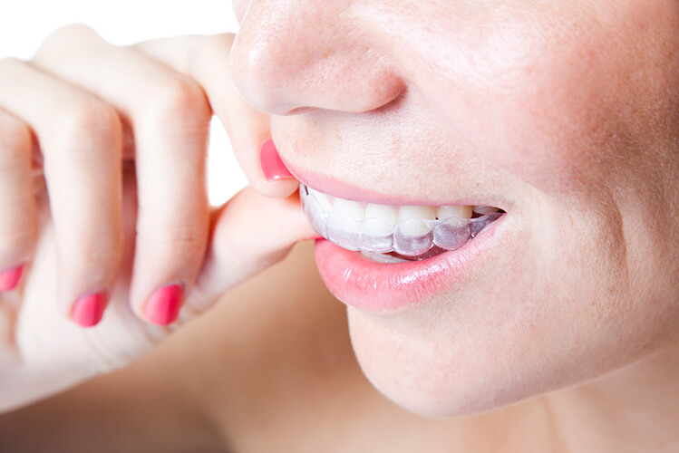 ClearCorrect Clear Aligners Orthodontics