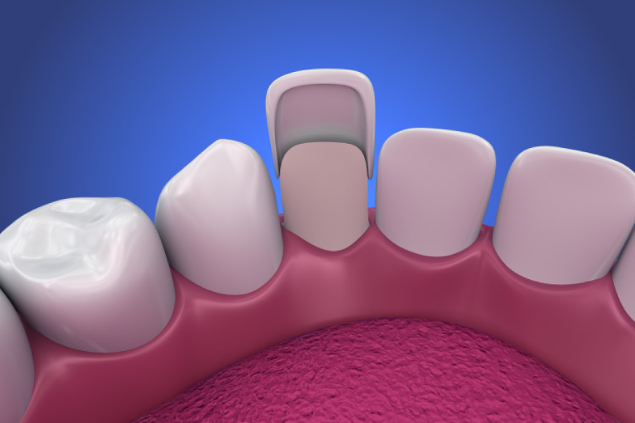 Model of a veneer placed on a smaller tooth.